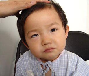 孩子斜视很难看 快看看你的孩子眼睛是否有问题